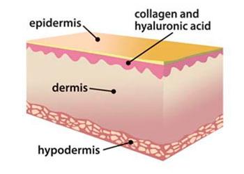 acido-hialuronico-lunaria-cosmetica